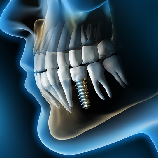 Animated smile with dental implant supported replacement tooth