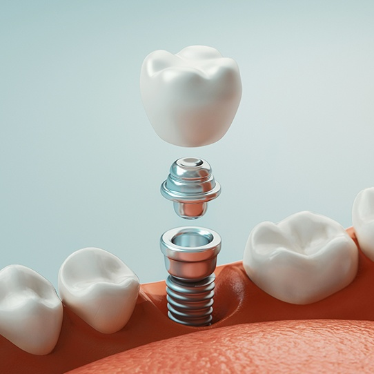Animated part of the dental implant and replacement tooth