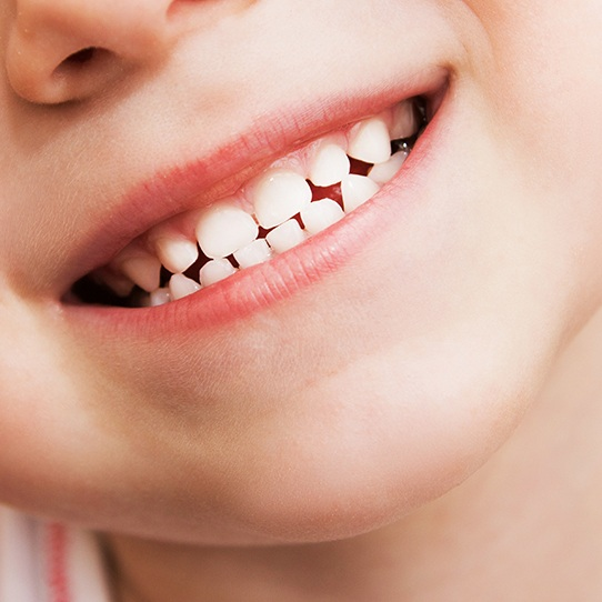 Closeup of child's smile after tooth colored filling placement