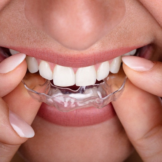 An up-close image of a woman inserting a clear aligner into the upper arch of teeth