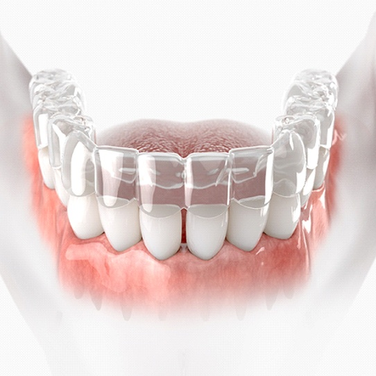 A digital image of a clear aligner being placed over the lower arch of a person's teeth