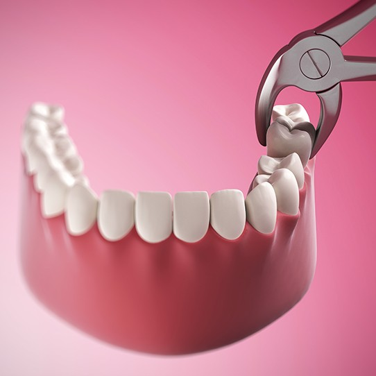 Animated tooth extraction process