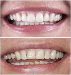 """A """"before and after"""" of a woman's smile corrected with cosmetic dentistry"""